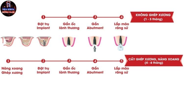 thời gian trồng răng implant