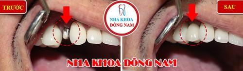 cấy 1 trụ implant răng nhai hàm trên