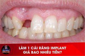 Làm 1 cái răng Implant giá bao nhiêu tiền?