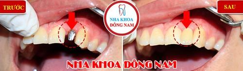 làm 1 cái răng implant