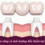 Làm cầu răng có ảnh hưởng đến thẩm mỹ không bác sĩ?