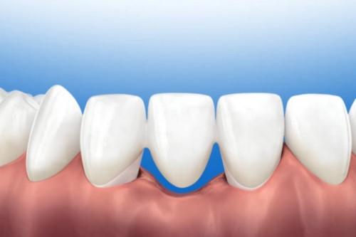 tiêu xương hàm dưới cầu răng sứ