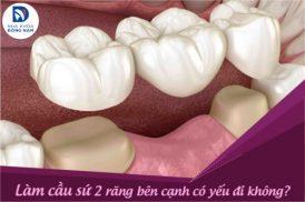 Làm cầu sứ 2 răng bên cạnh có yếu đi không?