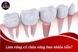Làm răng có chân răng bao nhiêu tiền?