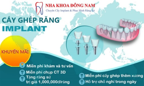 chính sách ưu đãi cấy ghép implant