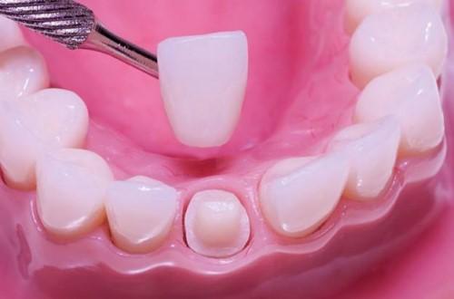mô phỏng làm răng sứ
