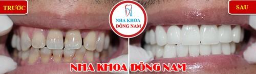 bọc sứ chỏ răng bị nhiễm màu