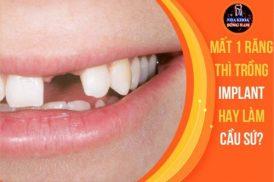 Mất 1 răng thì trồng Implant hay làm cầu sứ