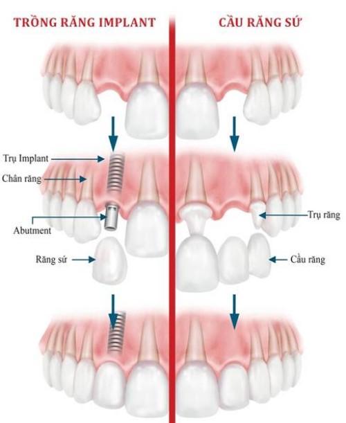 mô phỏng kỹ thuật trồng răng