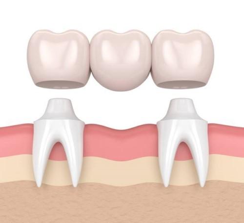 kỹ thuật trồng răng sứ bắc cầu