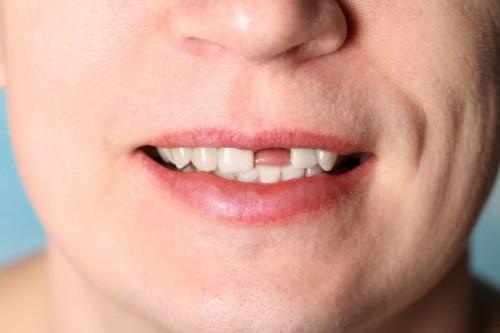 mất răng cửa