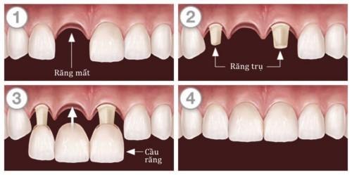 mô phỏng kỹ thuật trồng cầu răng sứ
