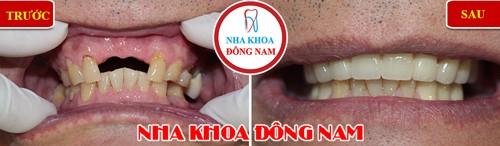 trồng cầu sứ cho răng cửa