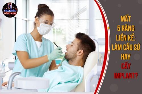 Mất 5 răng liền kề: Làm cầu sứ hay Cấy Implant?
