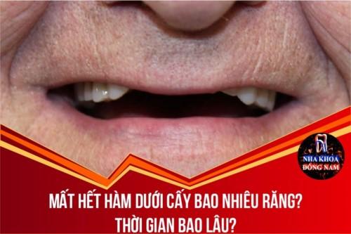 Mất hết hàm dưới cấy bao nhiêu răng? Thời gian bao lâu?