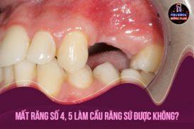 Mất răng số 4, 5 làm cầu răng sứ được không?