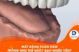 Mất răng toàn hàm trồng như thế nào? Bao nhiêu tiền?