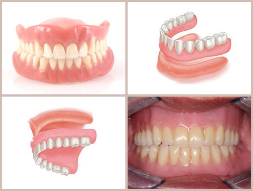 răng giả tháo lắp nguyên hàm