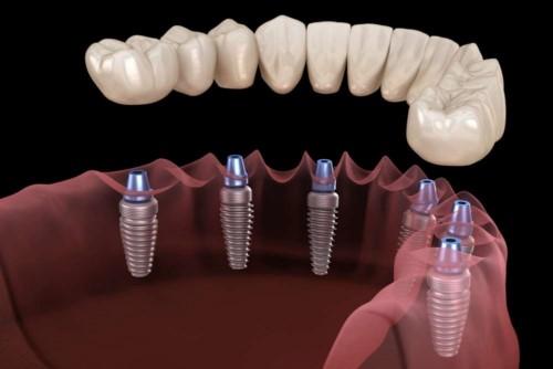 cấy ghép 6 trụ implant