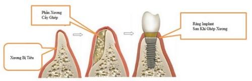 mô phỏng cấy ghép xương trong implant