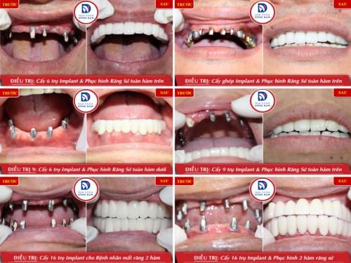 các trường hợp trồng răng toàn hàm bằng implant