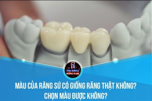 Màu của răng sứ có giống răng thật không? Chọn màu được không?