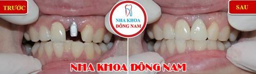 cấy 1 răng cửa bằng implant