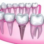 Nhổ 1 răng hàm trồng lại bao nhiêu tiền?