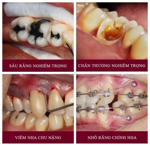 các trường hợp cần nhổ răng hàm
