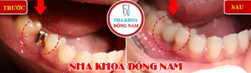 trồng 1 răng hàm bằng implant