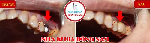 trồng răng nhai hàm trên