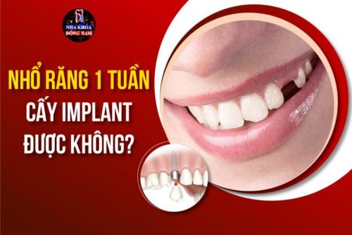 Nhổ răng 1 tuần cấy Implant được không?