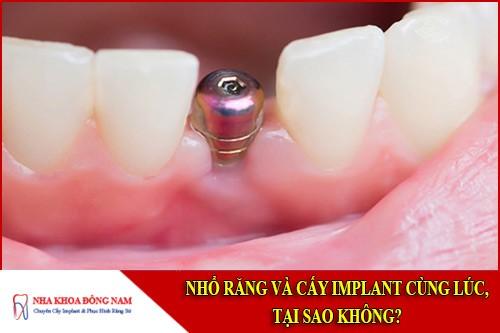 Nhổ răng và cấy Implant cùng lúc, tại sao không?