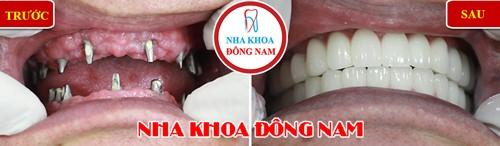 cấy 2 hàm răng implant