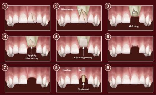 mô phỏng cấy ghép implant sau khi nhổ răng