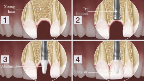 mô phỏng trồng răng bắt vít