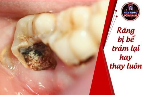 Răng bị bể trám lại hay thay luôn bác sĩ?