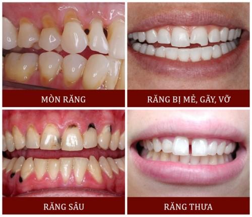 các trường hợp trám răng thẩm mỹ