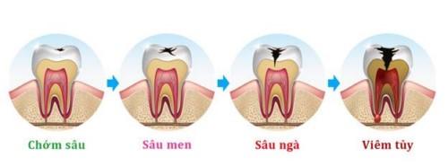 quá trình sâu răng viêm tủy
