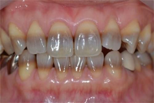 răng bị nhiễm màu