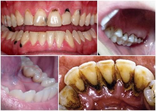 Răng bị đen trám lại được không?