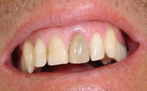 răng bị đen do tủy bị viêm nhiễm