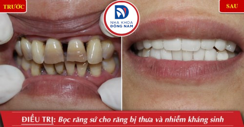 bọc răng sứ cho răng thưa nhiễm màu