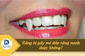 Răng bị gãy mẻ 1 nửa đắp răng nanh được không?