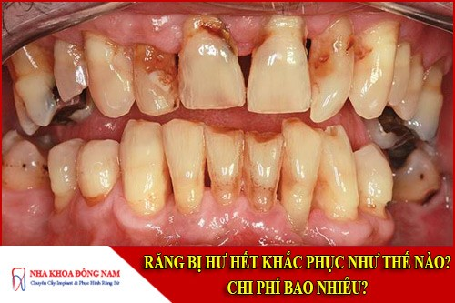 Răng bị hư hết khắc phục như thế nào? Chi phí bao nhiêu?