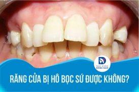 Răng cửa bị hô bọc sứ được không bác sĩ?
