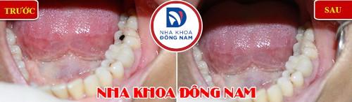 trám răng hàm bị sâu