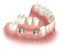 Răng ở vị trí không có trụ có bị tiêu xương không?