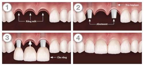 mô phỏng kỹ thuật trồng răng implant