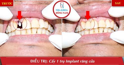 trồng 1 răng cửa bằng implant